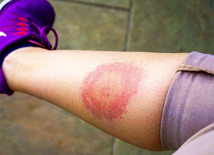 Lyme disease bulls eye rash